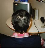 Fläckvis håravfall sköldkörtel